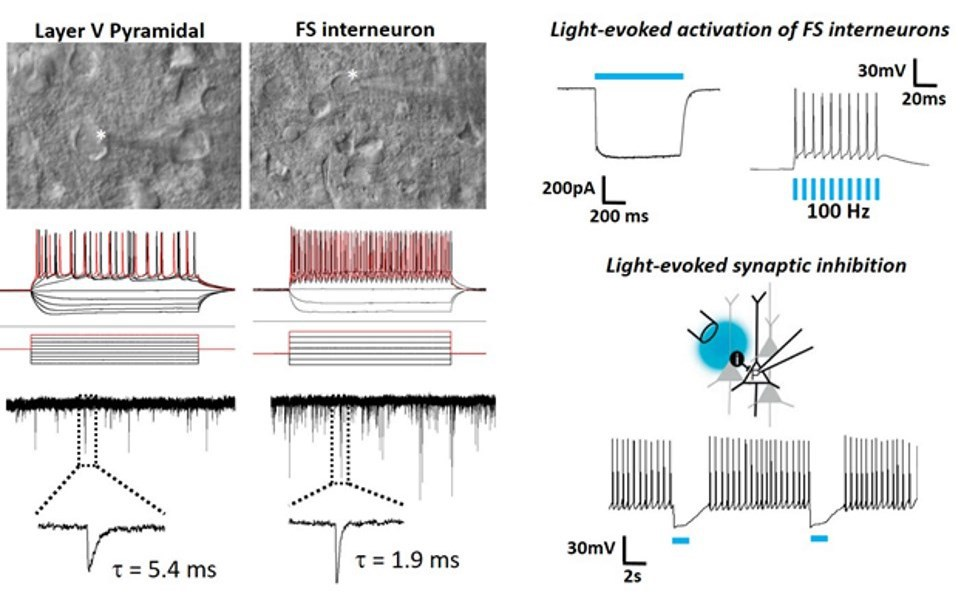 Recording in brain slices from old mice